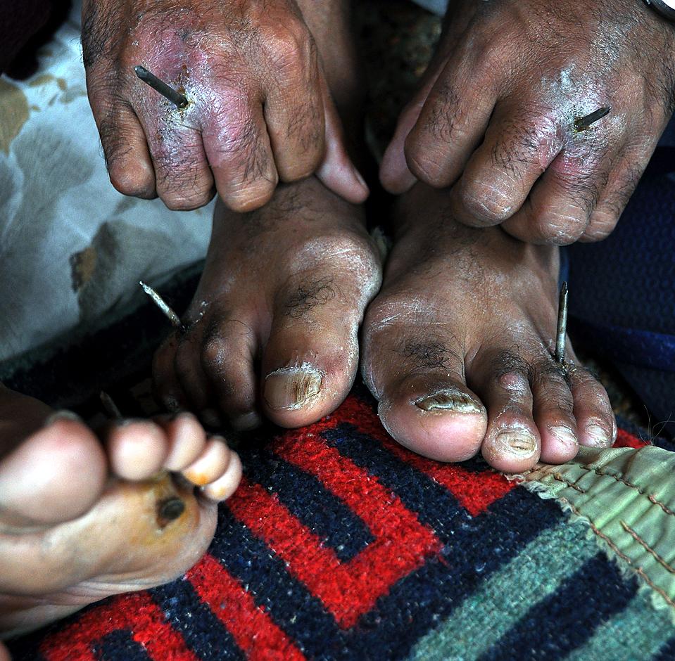 Бездомный из общественного движения «Sin Techo» 38 дней назад пронзил себе гвоздями руки и ноги с требованием фонда купить землю Fernando de la Mora, к востоку от парагвайского города Асунсьона. (Norberto Duarte/AFP/Getty Images)