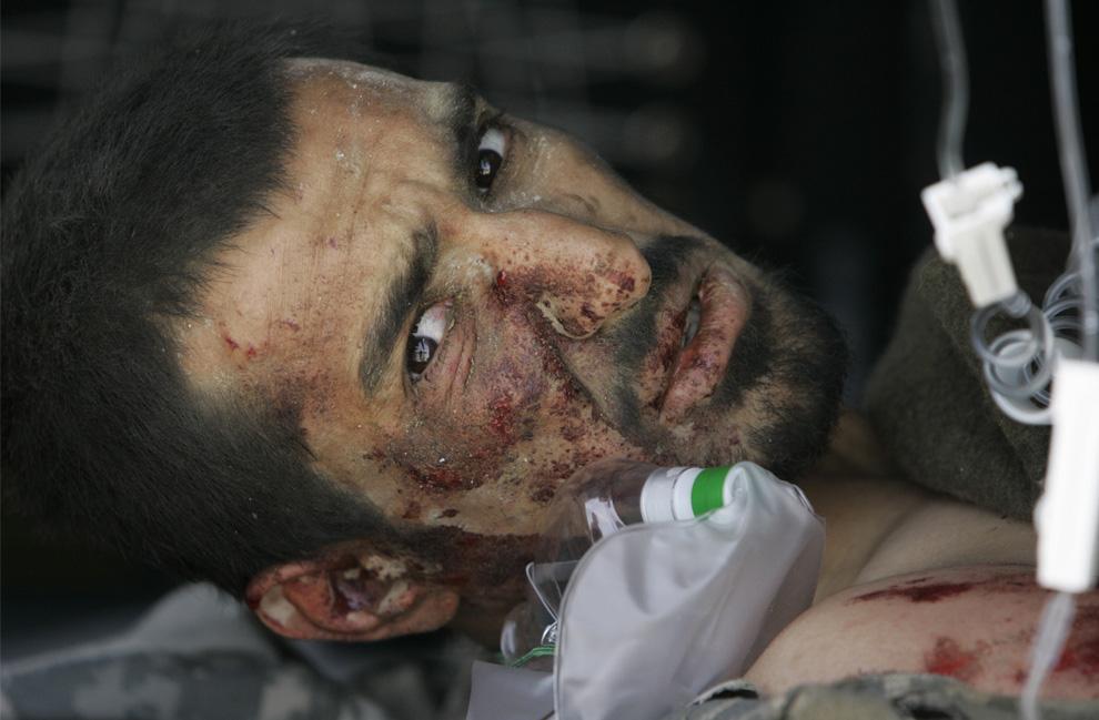 ) Раненый афганский переводчик, который работает с американскими военными, лежит на носилках, во время прибытия на военном вертолете в госпиталь военно-воздушной базы США Баграм, к северу от Кабула, 4 июня, 2009. (AP Photo/Rafiq Maqbool)