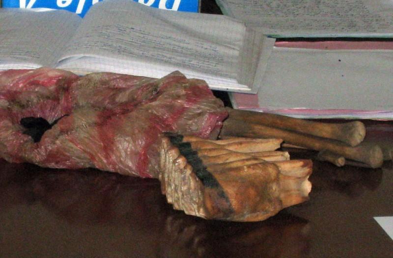 8) На этом снимке, сделанном 28 мая 2009 года, можно видеть части человеческого тела, включая бедренную кость, и содранную кожу, которые выставлены в зале суда во время судебного процесса над 11 бурундийцами. Подсудимые обвиняются в убийстве альбиносов, чьи конечности были проданы знахарям из соседней Танзании, в Руйиги. В ходе судебного разбирательства бурундийский прокурор, Никодеме Гахимбаре потребовал для подсудимых от одного года до пожизненного заключения. Гахимбаре требовал пожизненного заключения в качестве наказания для трех из 11 обвиняемых, восемь из которых были на скамье подсудимых за убийство восьмилетней девочки и мужчины, которое было совершено в марте этого года. (Esdras Ndikumana/AFP/Getty Images)