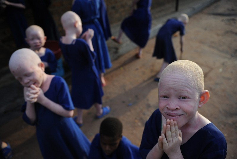 6) Дети-альбиносы во время перемены в рекреации начальной школы для слепых Митидо 25 января 2009 года. Эта школа стала настоящим убежищем для редких детей-альбиносов. (TONY KARUMBA/AFP/Getty Images)