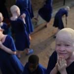 Альбиносы в Танзании