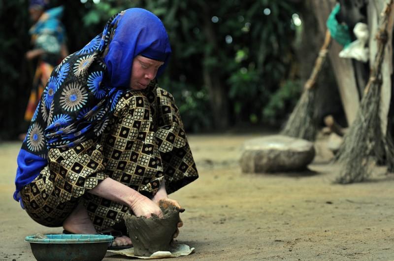 5) На этом снимке, сделанном 27 января 2009, 28-летняя Нима Каянья лепит горшок из глины в доме своей бабушки в Укереве, Танзания, где сейчас живут ее брат и сестра, тоже альбиносы, как и она. Укереве, остров на озере Виктория расположенный недалеко от города Мванза, является безопасным убежищем в сравнении с другими регионами Танзании, где альбиносы живут в страхе за свою жизнь, поскольку за ними объявлена настоящая охота, т.к. все чаще и чаще их внутренние органы и даже волосы используют для приготовления колдовских зелий. (TONY KARUMBA/AFP/Getty Images)