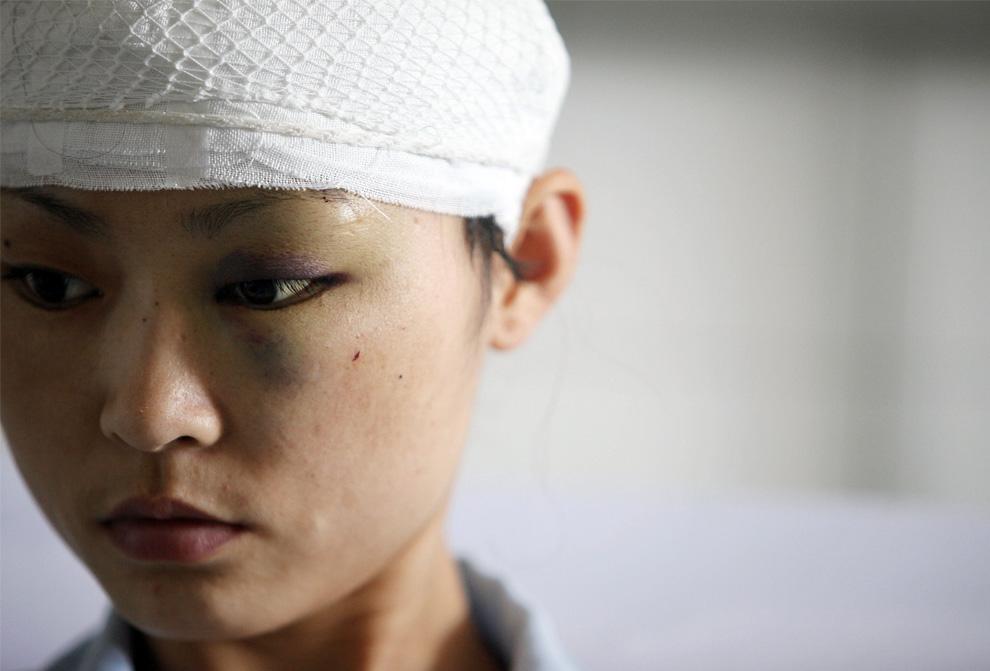 1) Лю Хуйлинг, представительница ханьской национальности получила ранения в ходе столкновений на этнической почве и сейчас находится в Народной больнице в городе Урумчи, Китай в западной провинции Синьцзян, в среду, 8 июля 2009. (AP Photo/Eugene Hoshiko)