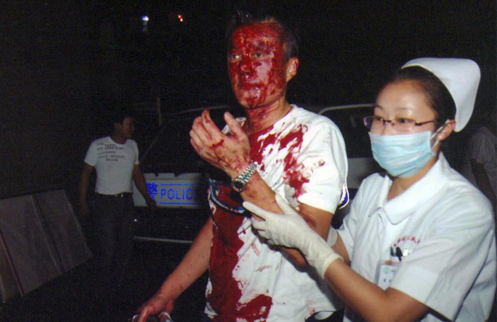 8) Медсестра помогает пострадавшему в беспорядках в Урумчи. Снимок сделан 5 июля 2009 года и опубликован  Пресс-службой правительства автономного района Синьцзян во вторник, 7 июля 2009. (AP Photo/Xinjiang Government Press Office)