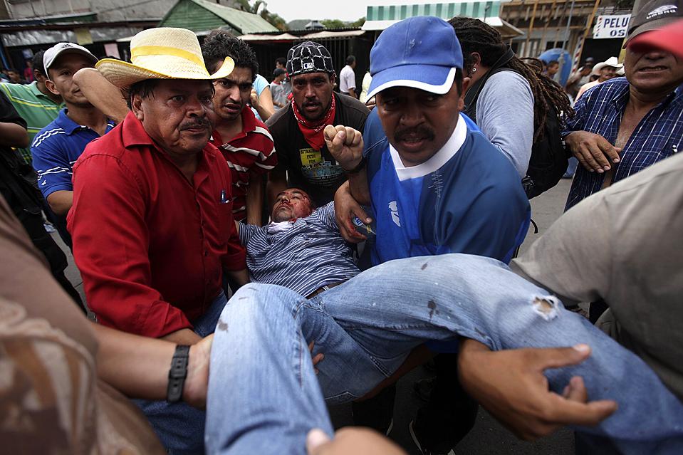 9) Смертельно раненого в голову сторонника свергнутого гондурасского президента Мануэля Селайи уносят в Тегусигальпе, Гондурас, в четверг. В четверг полиция сломила сопротивление протестантов, и Конгресс отложил решение об амнистии, который мог закончить тупиковую для правительства ситуацию. (Edgard Garrido/Reuters)