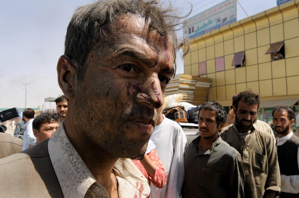 18. Раненый мужчина покидает место взрыва в Кабуле 18 августа 2009 года. (SHAH MARAI/AFP/Getty Images)