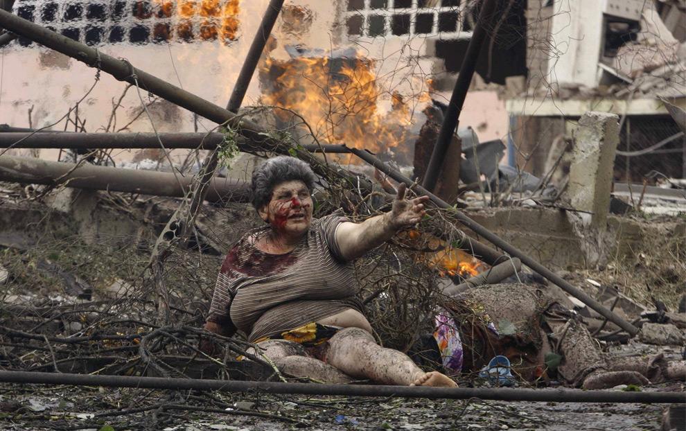 11) Раненая грузинская женщина в городе Гори после авиаудара российскими авиацтонными силами. Как утверждает фотограф, женщине потом помогли перейти в безопасное место ее соседи. Фото: Георгий Абдаладзе, AP Photo