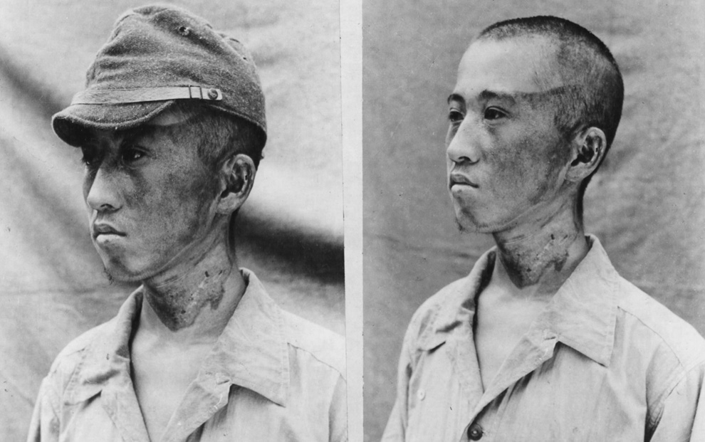 16. Этот пациент (снимок сделан японскими военными 3 октября 1945 года) находился примерно в 1 981,20 м от эпицентра, когда радиационные лучи настигли его слева. Кепка защитила часть головы от ожогов. (U.S. National Archives)