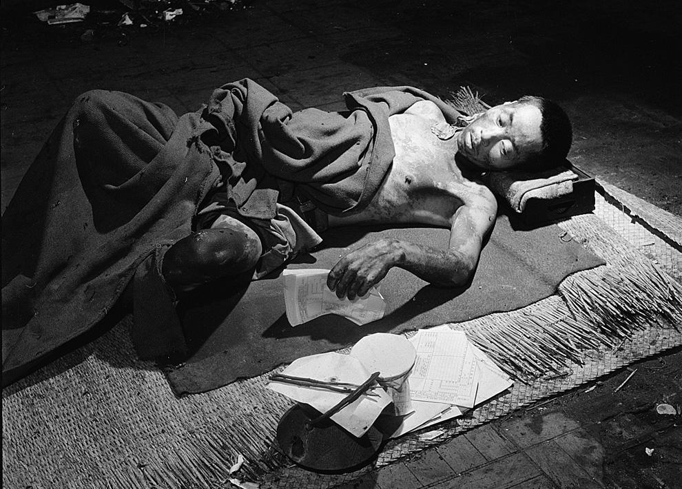 23. Жертва бомбардировки в Хиросиме лежит во временном госпитале, расположенном в одном из уцелевших зданий банка в сентябре 1945 года. (U.S. Department of Navy)