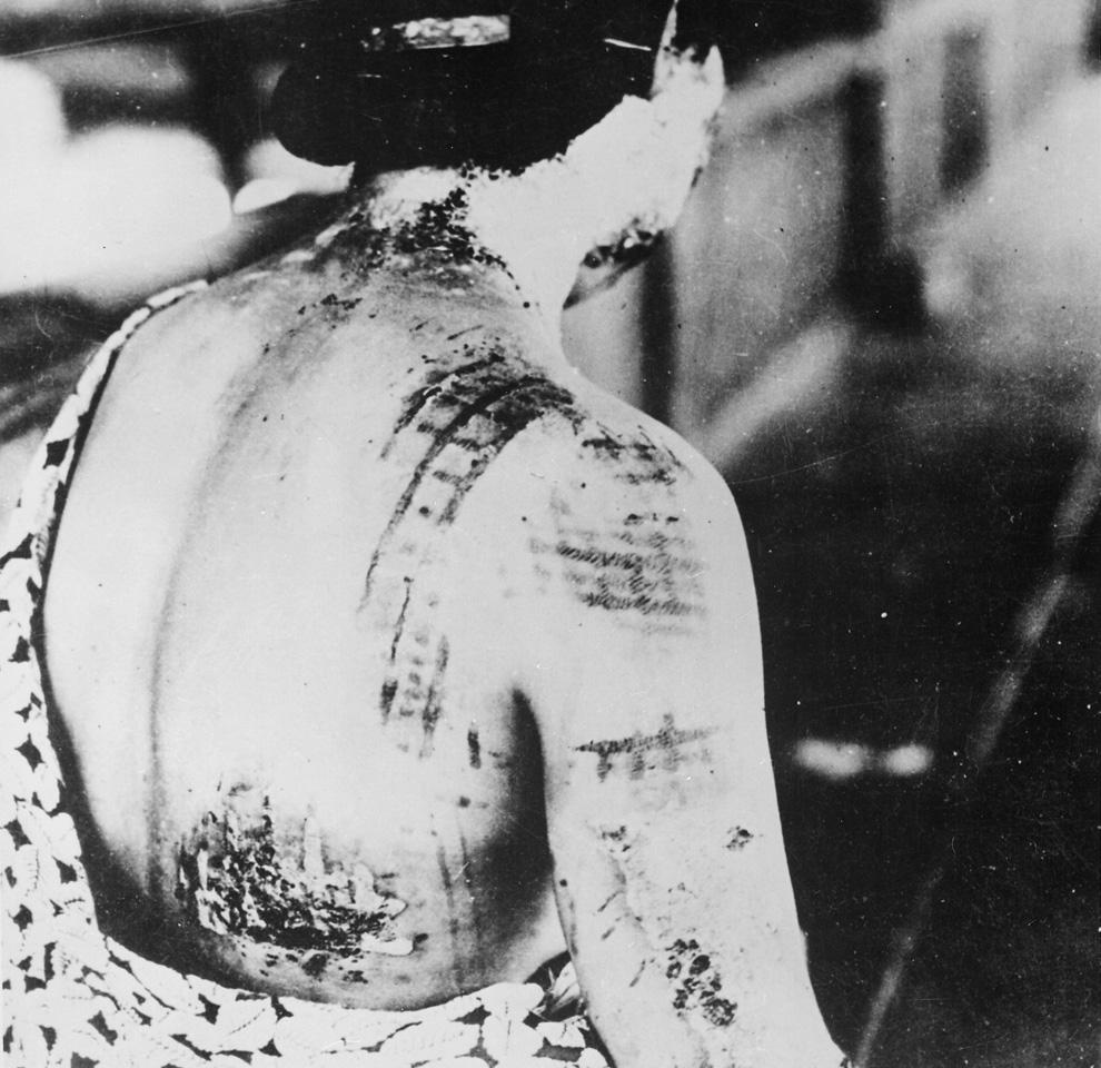 24. Из подписи к фотографии этой жертвы Хиросимы: «Ожоги на коже пациента остались в виде Ñ'ÐµÐ¼Ð½Ñ‹Ñ Ð¿ÑÑ'ен от кимоно, которое было на жертве в момент взрыва». (U.S. National Archives)