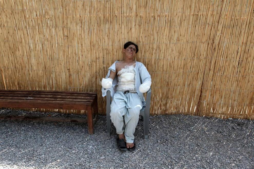 10) 14-летний Асмит Али сидит у полевого госпиталя Красного Креста в Пешаваре, Пакистан, 28 августа. Асмит играл с неразорвавшимся снарядом, и ему оторвало обе руки. (Faisal Mahmood/Reuters)