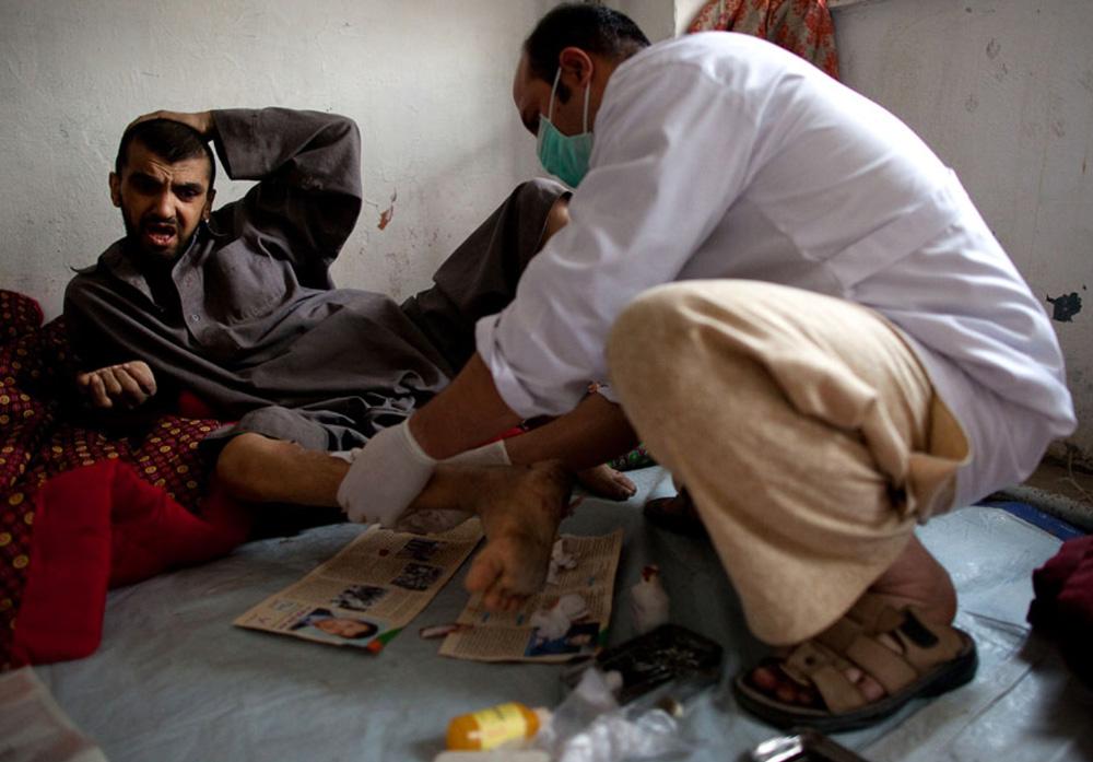 3) Врач осматривает исколотые ноги пациента в кабульском центре реабилитации наркоманов 28 сентября.  (Paula Bronstein/Getty Images)