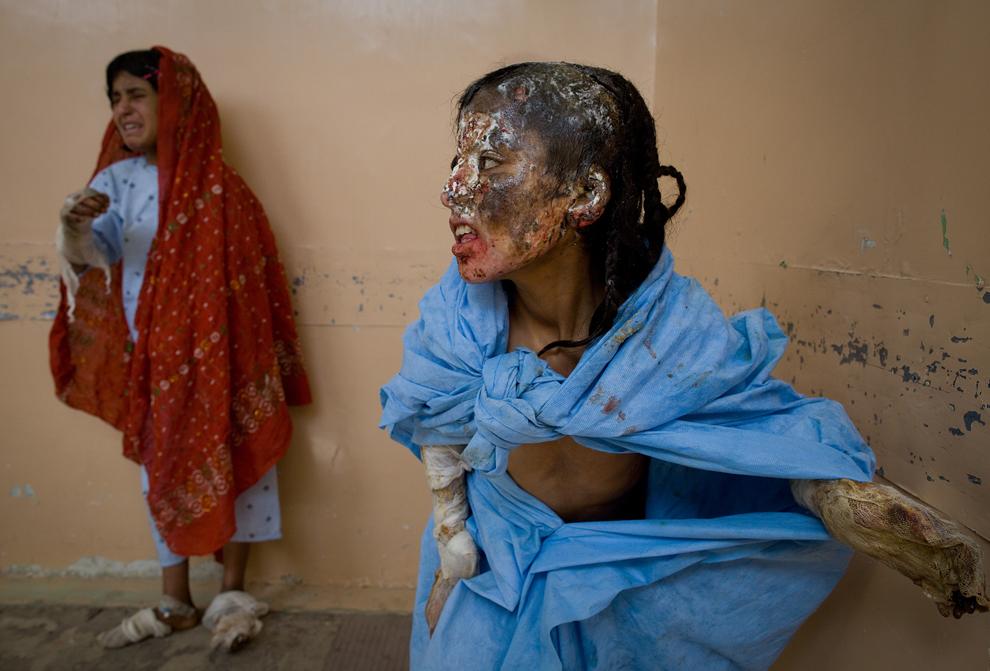 20. 9-летняя Асан Биби (справа) и ее сестра 13-летняя Салима (слева) стоят в коридоре больницы Мирваис 13 октября 2009 года в Кандахаре, Афганистан. Обе девочки получили сильные ранения, когда вертолет обстрелял их палатку посреди ночи 3 октября. Три члена семьи погибли сразу. Семья принадлежит этническому народу кучи – кочевникам, живущим в палатках в пустыне. Эти люди очень страдают от боевых действий, смсла которых они мало понимают. (Paula Bronstein/Getty Images)