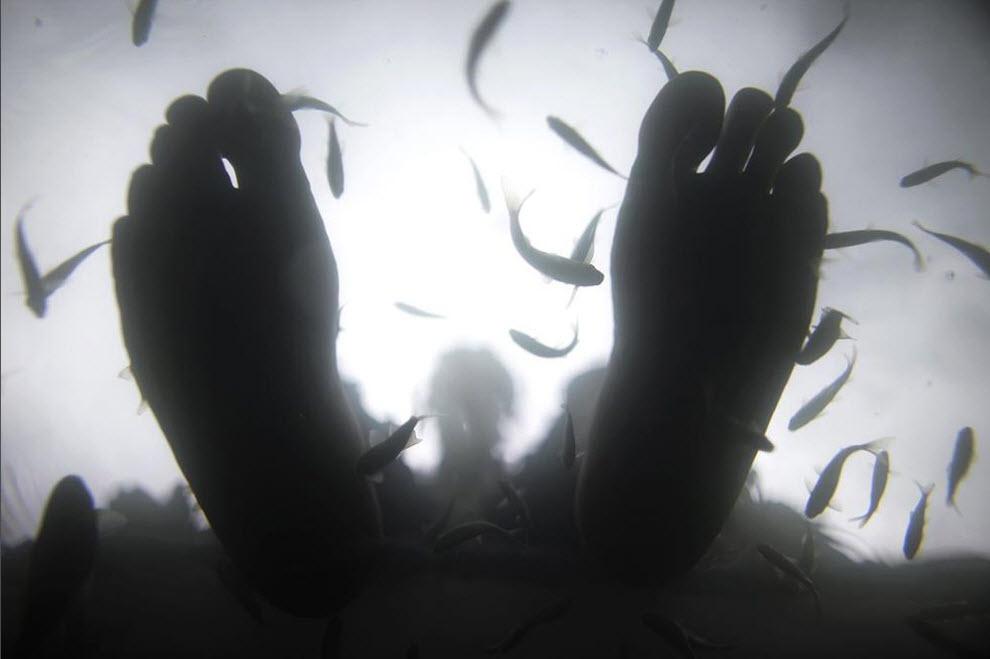 fish0007 Рыбка доктор лечит людей