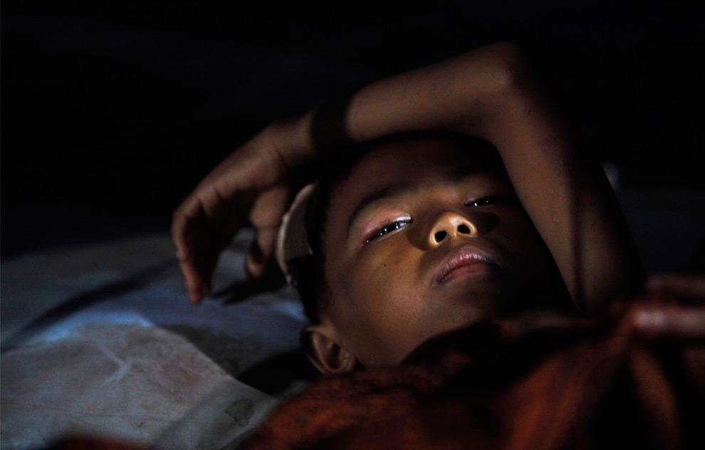 38. Индонезийский мальчик Сигон (11 лет), раненный во время землетрясения, лежит в самодельной больнице в городе Паданг, Суматра, Индонезия, в субботу 3 октября 2009 года. (AP Photo/Kevin Frayer)