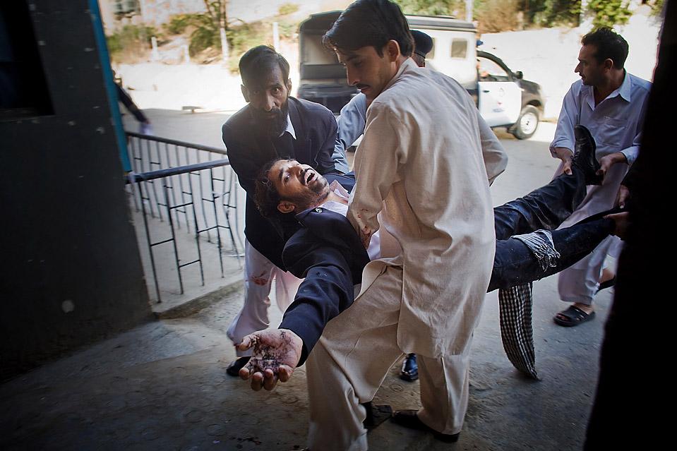 7) Пострадавший от взрыва смертника был доставлен в больницу в Пешаваре, Пакистан. Террорист-смертник взорвал бомбу у здания суда рядом с комплексом Верховного суда в Пешаваре, в результате чего погибли, по меньшей мере, 15 человек и были ранены более 20. (Daneil Berehulak/Getty Images)
