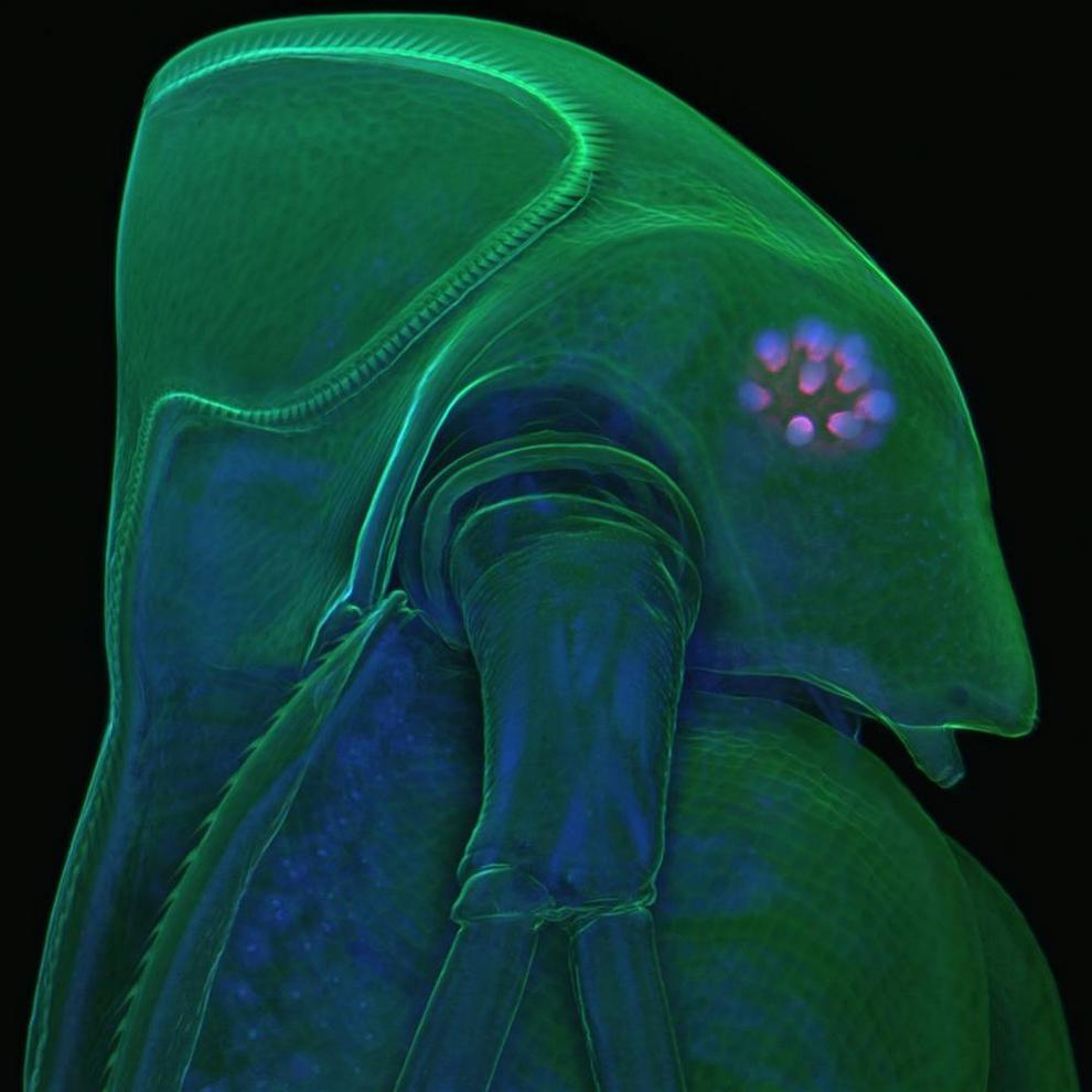 1. Этот снимок Гиста Крофта и Макензи Вейграндт из Колумбийского университета занял 10-е место на конкурсе. На снимке изображен двигательный нейрон, пораженный боковым амиотрофическим склерозом, известным также как болезнь Лу Герига. Для этого снимка были взяты клетки кожи 83-летнего пациента с боковым амиотрофическим склерозом и перепрограммированы в индуцированные полипотентные стволовые клетки. Затем эти клетки были превращены в нейроны. Изучение подобных нейронов поможет ученым противостоять боковому амиотрофическому склерозу. (Gist Croft and Mackenzie Weygandt)