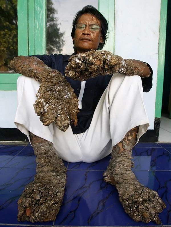 """6.  Nelayan Indonesia dengan pertumbuhan pada tangan dan kaki, seperti cabang pohon, mengatakan pada Desember tahun lalu bahwa kondisinya telah memburuk meskipun operasi.  Dada - """"manusia pohon"""" kata pertumbuhan muncul lagi segera setelah ia dihapus mereka pada bulan Agustus.  (Supri, Reuters / Corbis)"""