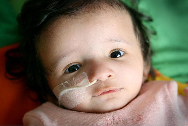 "11.  Inggris surayah Brown adalah bayi menderita penyakit yang tidak biasa yang mencegah dia dari tumbuh.  Pada tahun dan dua terlihat seperti bayi yang baru lahir, beratnya hanya 3,17 kg dan tinggi badannya - hanya 48 cm ""Ini adalah paradoks yang nyata,"" - kata salah satu dokter.  (Daily Mirror / ZUMA Press)"