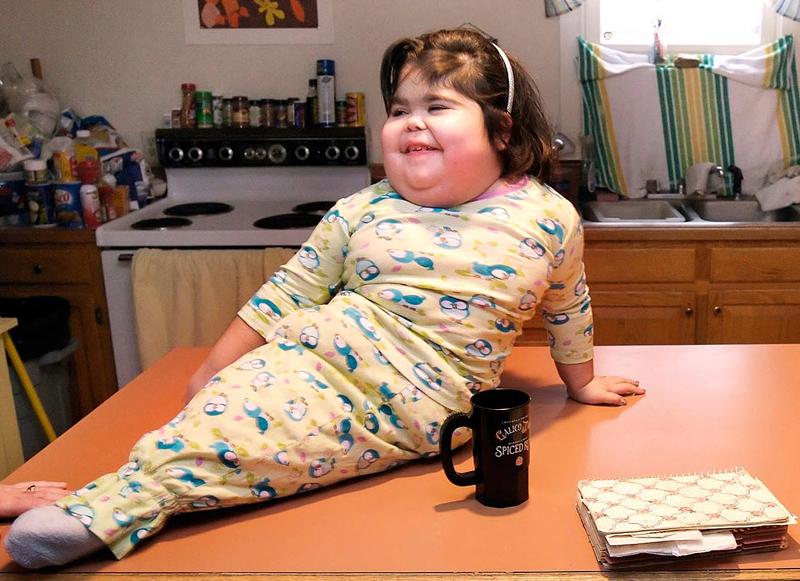 2. Шило Пепин родилась со сращенными ногами – это состояние часто называют «синдром русалки». Хотя доктора считали, что девочке суждено прожить всего несколько дней, она прожила десять лет. Шило умерла 23 октября. На этом фото она сидит на столе в своем доме в Кеннебанкропте, штат Мэн, в 20007 году. (Gregory Rec, Portland Herald / AP)