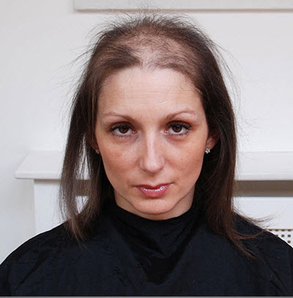 1. Робина Хатчингс из Англии страдает трихотилломанией – неконтролируемым желанием выдергивать себе волосы. В апреле она дала интервью лондонской газете «Daily Mail», в котором призналась, что начала выдергивать волосы с 11 лет и теперь, спустя 27 лет, все еще не может себя контролировать. (Damien Mcfadden, Whitehotpix / ZUMA Press)