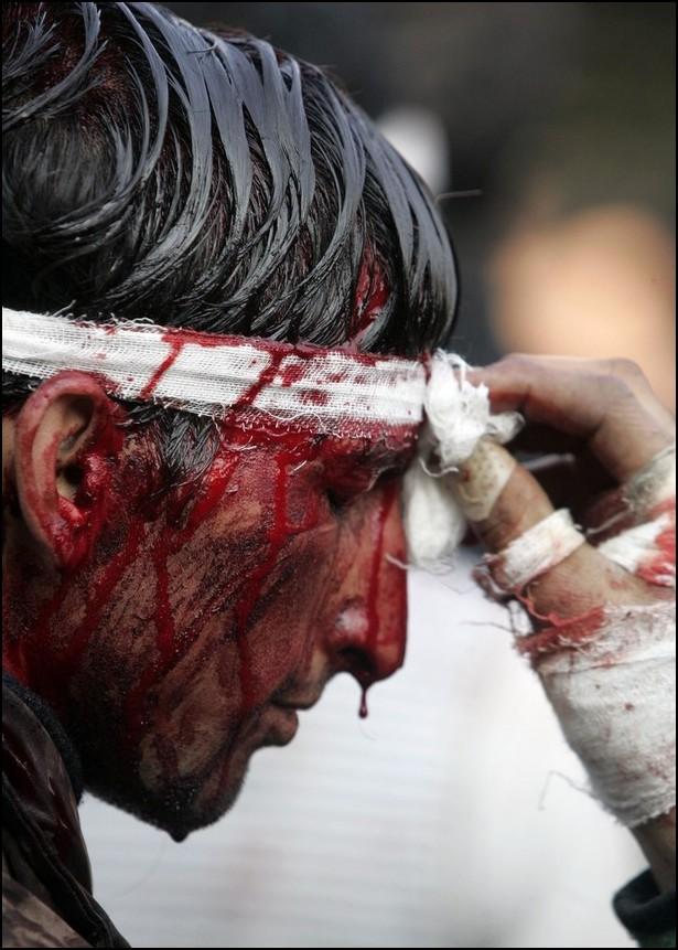 4) © REUTERS/Danish Ismail // Парамедик смывает кровь с лица шиита.