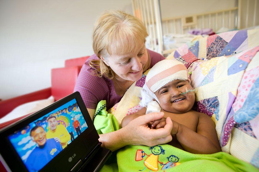 8) Кришна со своим опекуном. Глава нейрохирургического департамента мельбурнской больницы Royal Children's Hospital Вирджиния Мэйкснер заявила, что ожидает полного выздоровления Тришны и Кришны. Без уникальной операции разделения девочек ждала бы смерть.