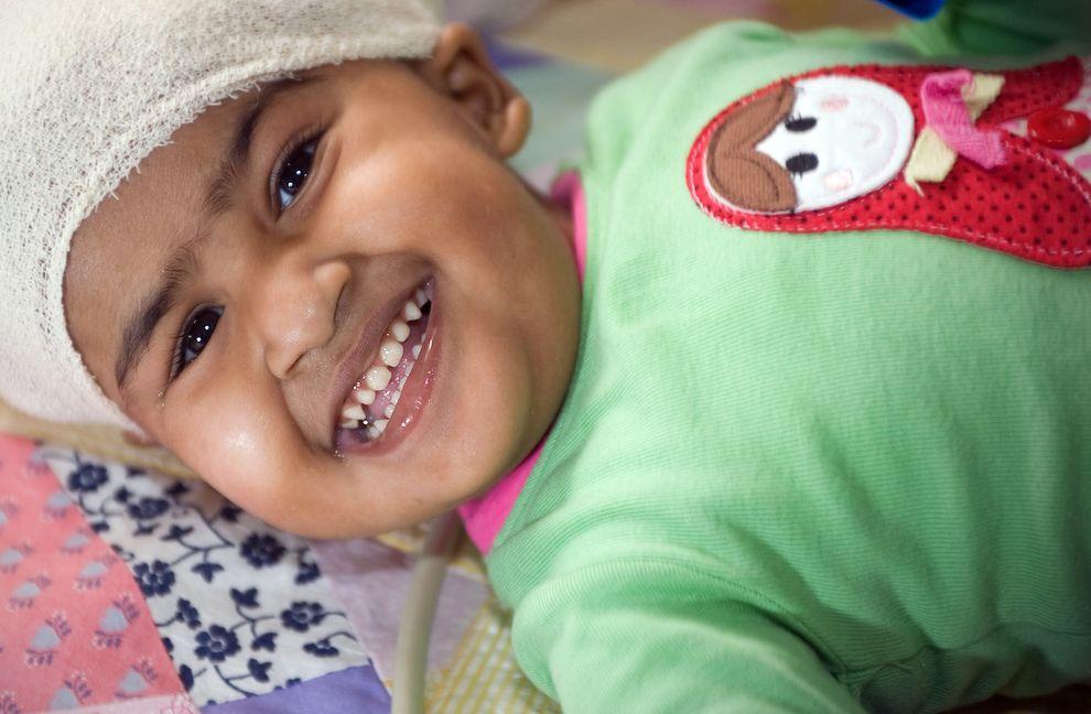 9) Кришна, одна из девочек, которой сделали операцию. Около половины сиамских близнецов рождаются мёртвыми. Результирующий уровень выживания младенцев 5—25 %.