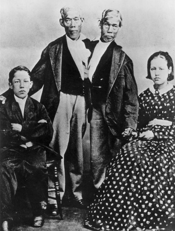 10) Первый случай, когда два мальчика, Чанг и Энг Букер, родившиеся в городе Маклонге (в нынешнем Таиланде) в 1811 году (тогда эта страна именовалась Сиамом), выжили и так и провели всю жизнь, не имея возможности ни на секунду расстаться друг с другом. Даже когда Чанг умер от воспаления легких, Энг не согласился на операцию, которая освободила бы его. Он скончался спустя два часа, в возрасте 63 лет.