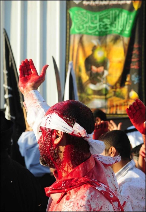 10) © REUTERS/Zaki Ghawas // Истекающие кровью шииты.