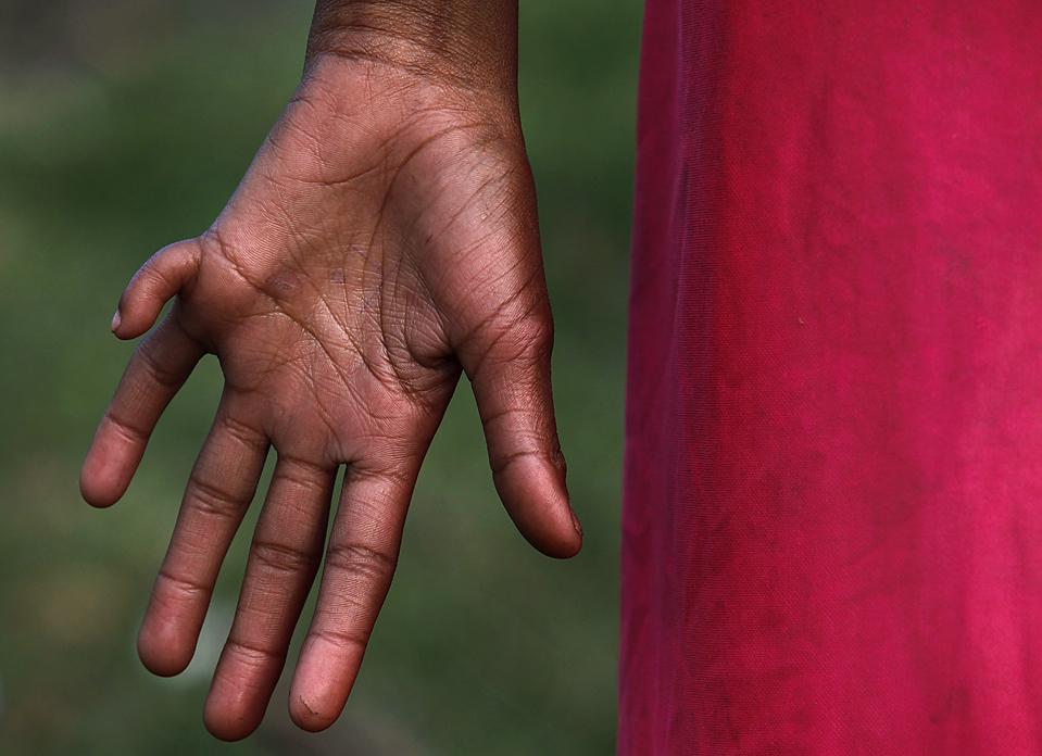 7) 11-летний Сала Раиквар в трущобах рядом с заводом по производству пестицидов в Бхопале, Индия. В 1984 году утечка токсичного газа на заводе привела к гибели тысяч людей. Активисты считают, что физические и психические отклонения детей, родившихся после катастрофы, являются результатом загрязнения 1984 года. (Reinhard Krause/Reuters)