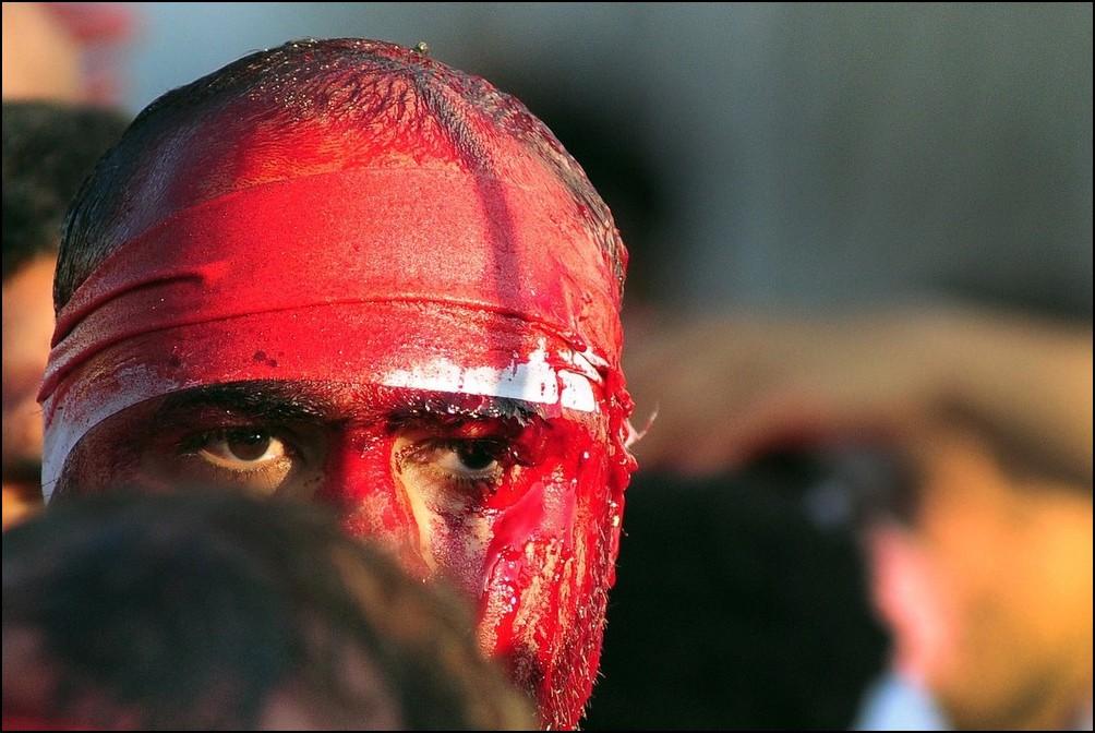 11) © REUTERS/Zaki Ghawas // Истекающие кровью шииты.