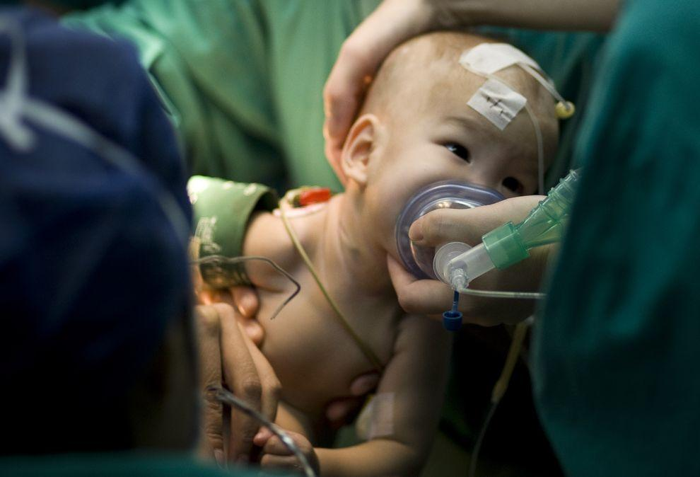 12) Ребенок сразу после операции, в ходе которой команда хирургов успешно разделила сиамских близнецов-сирот. Вероятность рождения сиамских близнецов составляет примерно один случай на 200 000 родов.