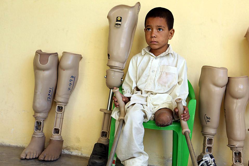 6) Мальчик ожидает перевязки в ортопедическом центре Международного Красного Креста в Кабуле, Афганистан. Ортопедический центр сосредотачивает усилия на обучении и реабилитации жерт противопехотных мин. (Majid Saeedi/Getty Images)