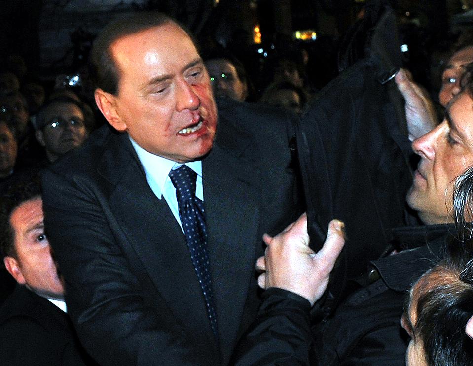 4) Итальянский премьер-министра Италии Сильвио Берлускони был госпитализирован с переломом носа и двумя сломанными зубами после атаки психически ненормального человека, Массимо Тарталья. Как утверждается, нападающий ударил премьера статуэткой во время проведения политического митинга в Милане в воскресенье. Подозреваемый был отправлен в тюрьму. (Livio Anticoli/Italian Prime Minister's Press Office/Reuters)