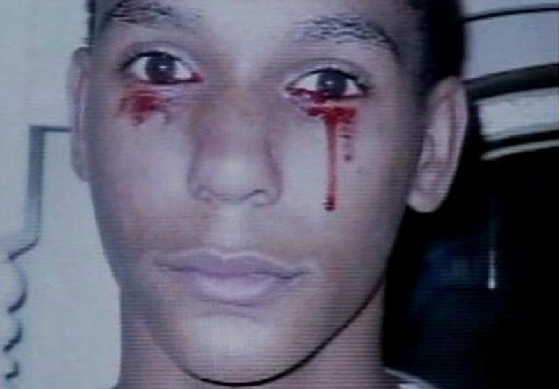 14) Кальвио Инман (Calvino Inman) плачет кровавыми слезами, причем до трех раз в день. (SPLASH)
