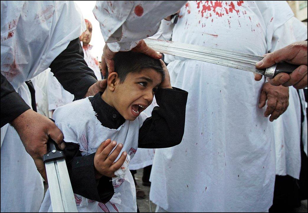 23) Karim Kadim ©, AP / / Seorang anak laki-laki dengan pedang memotong daging dari kepala.