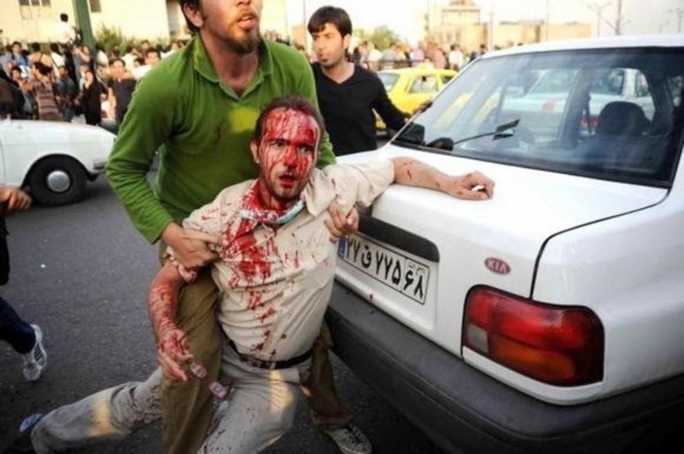 6) На этом фото, сделанном 21 июня 2009 года, раненому мужчине помогают в Тегеране. В воскресенье прореформистские активисты выступили с критикой иранских властей после недели беспрецедентных массовых протестов против лидерства Исламской республики. (REUTERS via Your View)