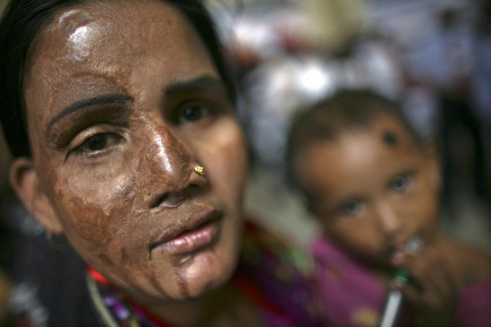 17) Жертва атаки кислотой на митинге со своим ребенком в Дакке 12 мая 2009 года. Фонд пострадавших от нападений с использованием кислоты в Бангладеш, предоставляющий помощь и поддержку пострадавшим, провел во вторник международную конференцию в честь своего 10-летия. В конференции приняли участие около 600 жертв нападений с использованием кислоты из Бангладеш, Пакистана, Индии, Камбоджи, Уганды и Непала. (REUTERS/Andrew Biraj)