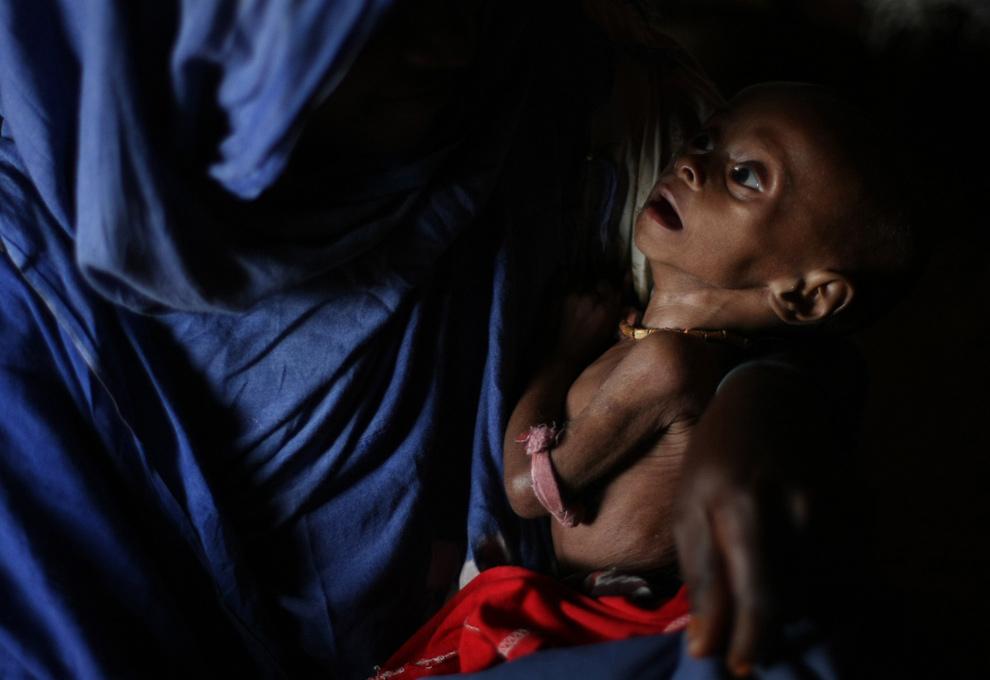 18. Мальчик, страдающий недоеданием, лежит на руках матери в лагере для внутренне-перемещенных лиц на окраине Могадишу, Сомали, 11 июля 2009 года. Более 200 000 людей были лишены домов за последние два месяца, и еще сотни мирных жителей погибли или были ранены. В попытке избежать военных действий тысячи семей перешли в лагери для беженцев за пределами города, где они попали в жестокие условия жизни. (MOHAMED DAHIR/AFP/Getty Images)