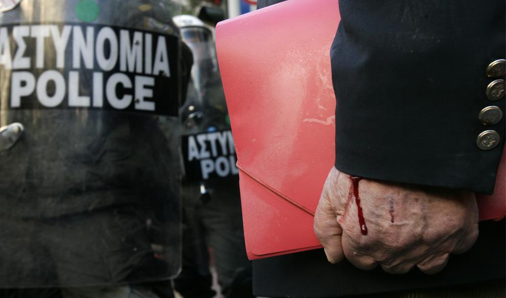 35. У мужчины, стоящего перед кордоном полицейских, кровоточит рука во время демонстрации в Афинах 9 декабря 2008 года. (REUTERS/John Kolesidis)