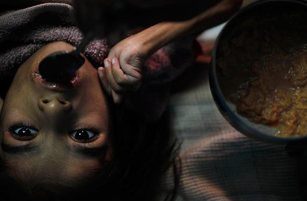 18.  Apeksha Mulvey makan di rumah di Bhopal, India, 22 November 2009.  25 tahun kemudian setelah bencana buatan manusia, banyak ibu melahirkan seorang anak cacat fisik atau mental.  (AP Photo / Saurabh Das)