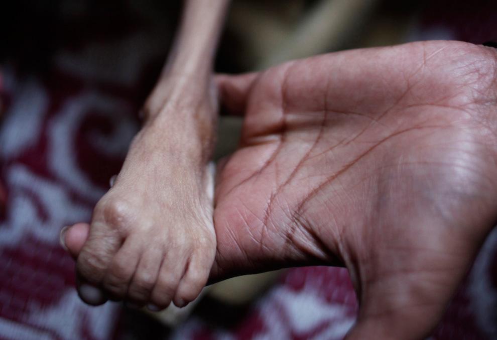 27.  Para fisioterapis terus kaki anak 7 tahun di klinik untuk korban non-pemerintah organisasi buatan manusia bencana di Bhopal, India, 20 November 2009.  (AP Photo / Saurabh Das)