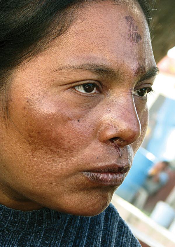 5. Мария из Гватемалы получила эти раны, когда выпала из грузового поезда. (Diana Castillo and Dariela Diaz)