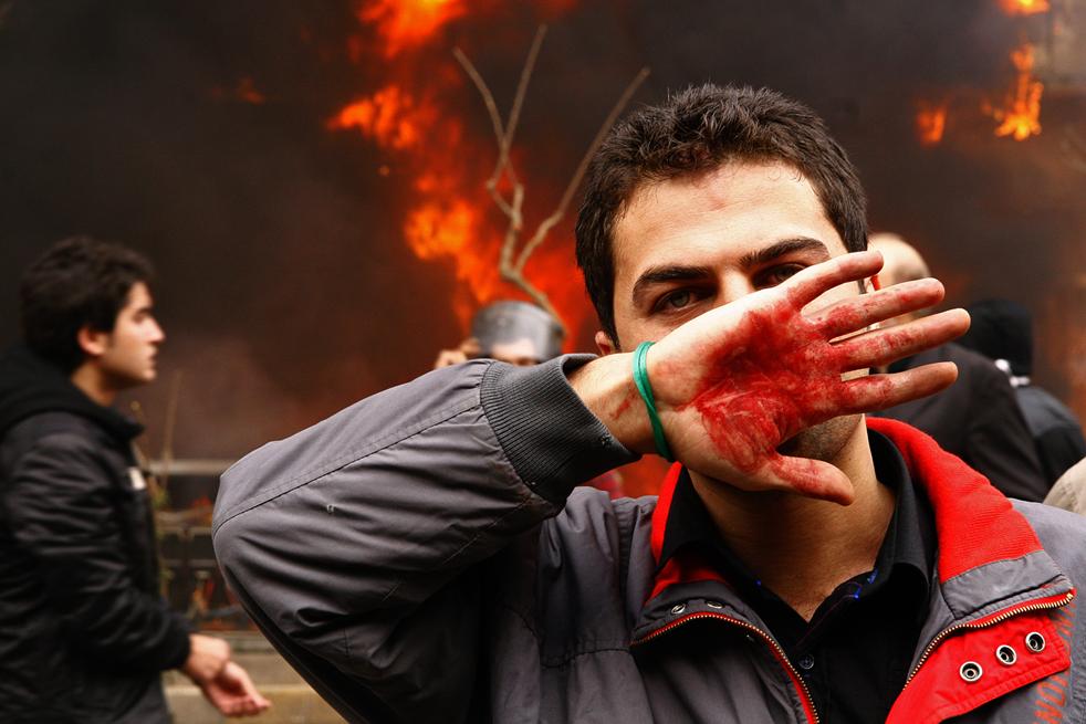 10. Сторонник иранской оппозиции прикрывает лицо окровавленной рукой во время столкновения с полицией в Тегеран 27 декабря. (AFP / Getty Images)
