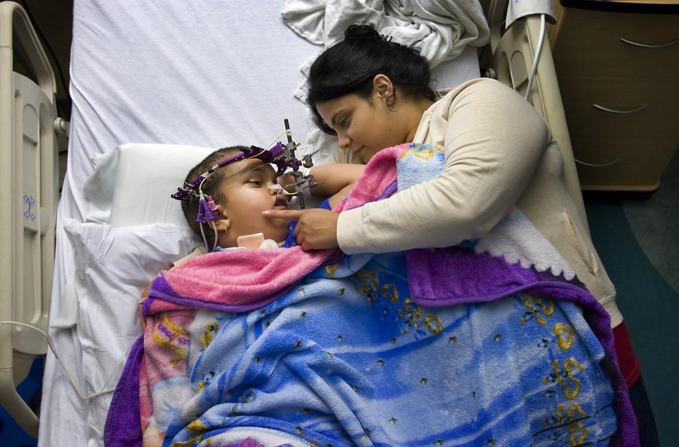 3) Черепно-лицевая хирургическая операция нужна была для расширения черепа, чтобы он мог расти, и давление на глаза и уши  уменьшилось. Чтобы череп со временем развивался правильно, девочке вставили титановое кольцо. На снимке Америка лежит в отдельной палате Детского медицинского центра Делл, и ее поддерживает мама, которая каждую ночь спит вместе с ней или на диванчике в углу. (Photos by Ralph Barrera/Austin American-Statesman)