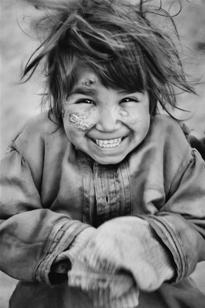 6) На лице этой девчушки улыбка соседствует со шрамами, оставшимися после взрыва. Север Кабула.