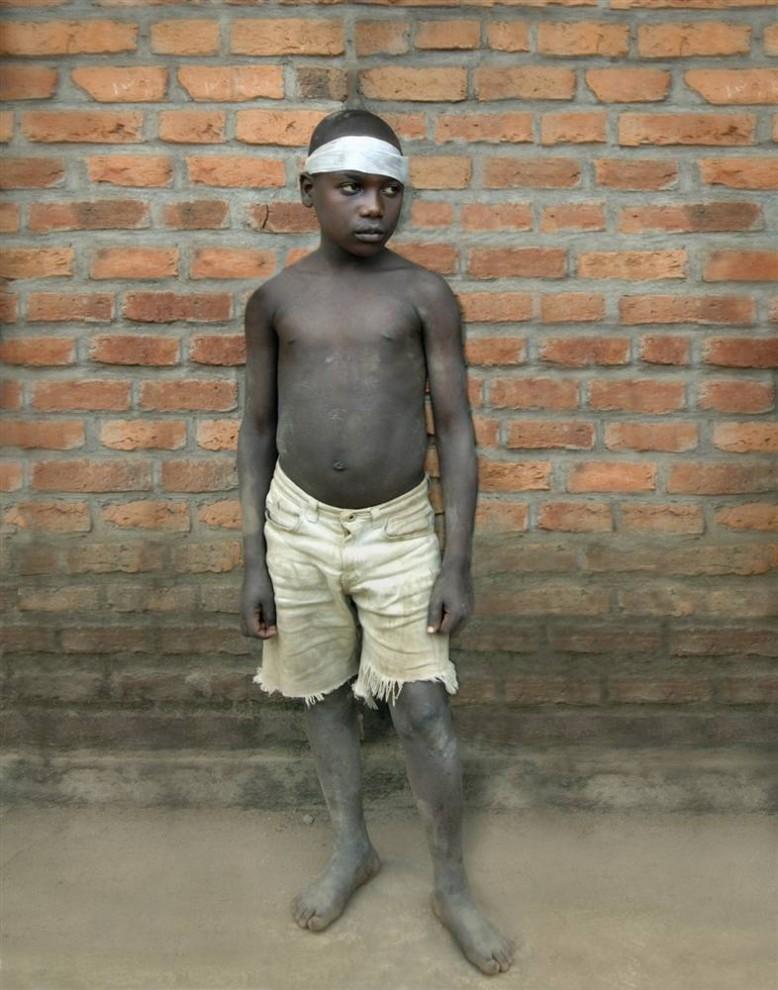 10) Мойзес живет в реабилитационном лагере для детей-солдат в Руенгери, Руанда. В семь лет он воевал в Конго и убил троих. (Bobby Sager / The Power of the Invisible Sun)
