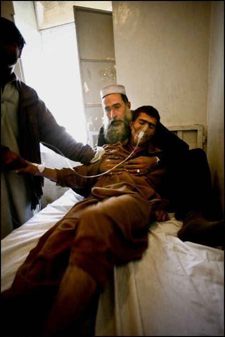 22) Шахтер в госпитале, куда он попал после взрыва на шахте.