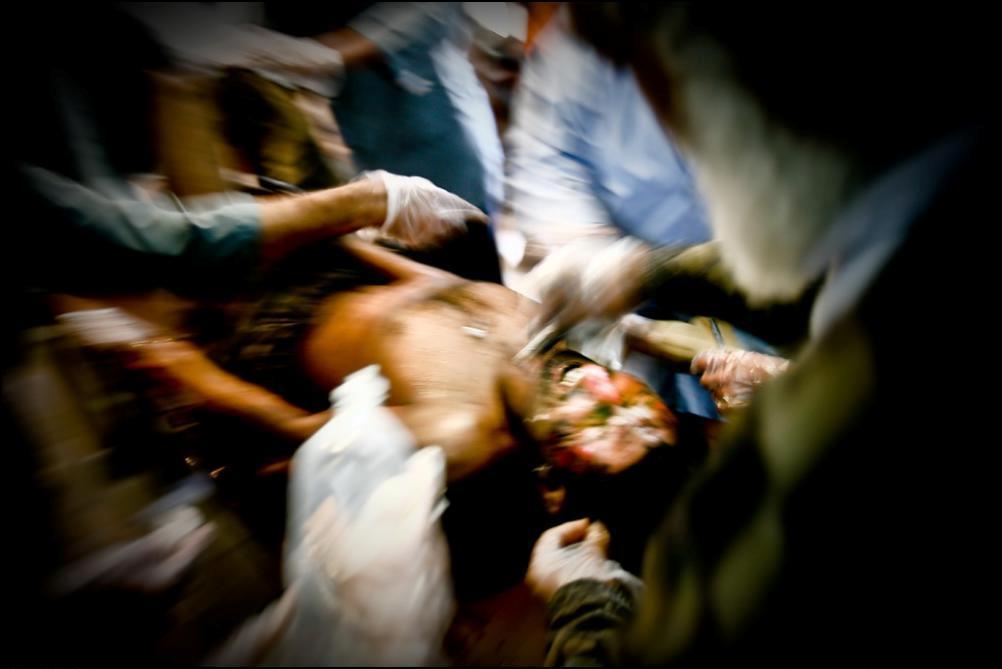 26) Персонал госпиталя ухаживает за раненым шахтером.